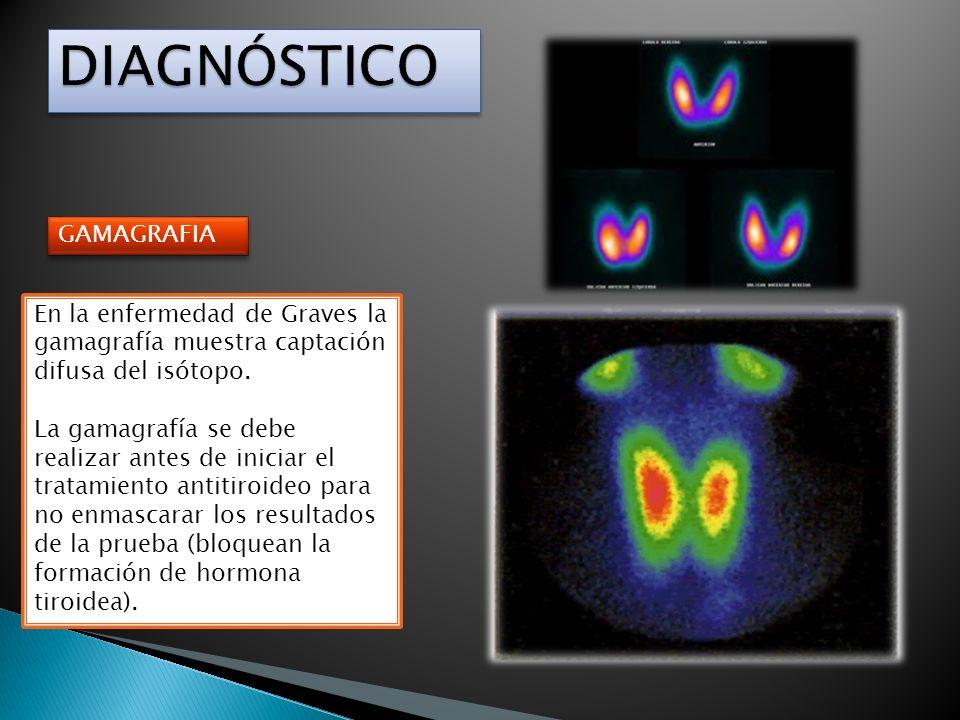 GAMAGRAFIA En la enfermedad de Graves la gamagrafía muestra captación difusa del isótopo. La gamagrafía se debe realizar antes de iniciar el tratamien