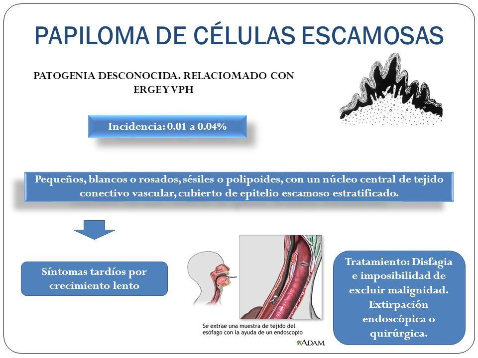 PAPILOMA DE CÉLULAS ESCAMOSAS PATOGENIA DESCONOCIDA. RELACIOMADO CON ERGE Y VPH Incidencia: 0.01 a 0.04% Pequeños, blancos o rosados, sésiles o polipo