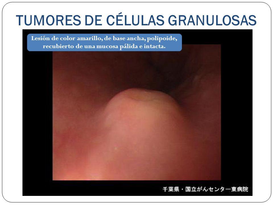 TUMORES DE CÉLULAS GRANULOSAS Lesión de color amarillo, de base ancha, polipoide, recubierto de una mucosa pálida e intacta.