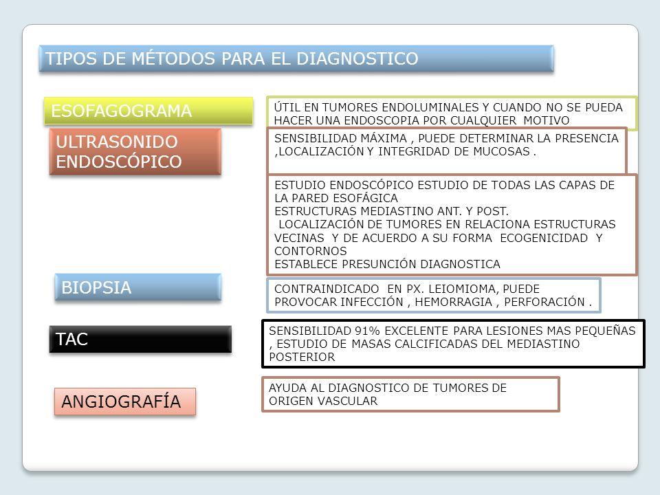 Leiomioma Esofágico Ruth Noemí Blancas Lazaro
