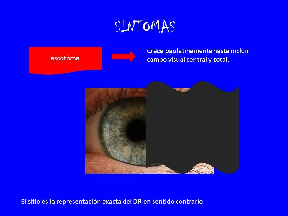 SINTOMAS escotoma Crece paulatinamente hasta incluir campo visual central y total. El sitio es la representación exacta del DR en sentido contrario