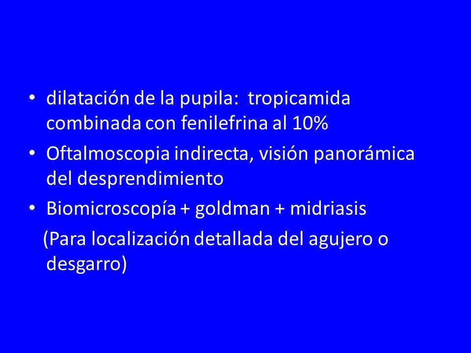 dilatación de la pupila: tropicamida combinada con fenilefrina al 10% Oftalmoscopia indirecta, visión panorámica del desprendimiento Biomicroscopía +