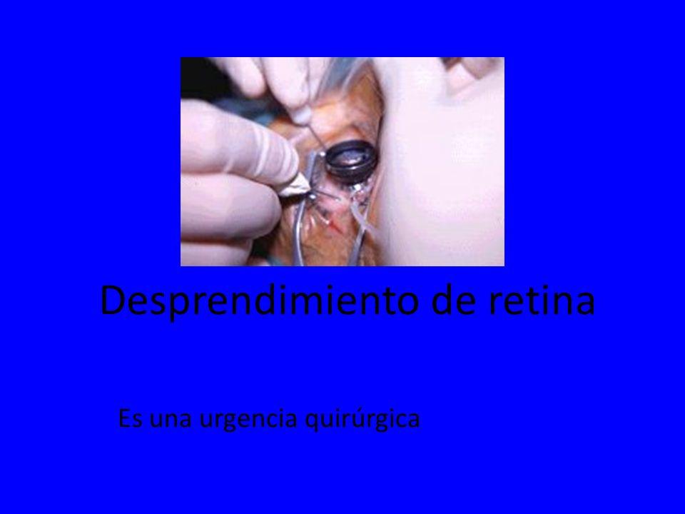 Desprendimiento de retina Es una urgencia quirúrgica