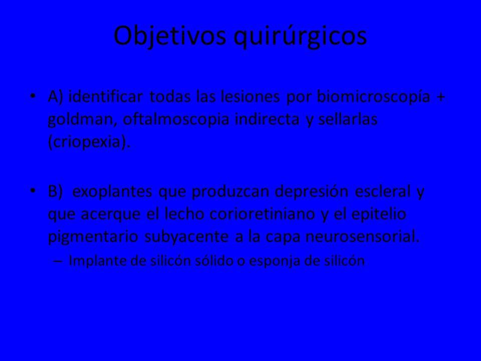 Objetivos quirúrgicos A) identificar todas las lesiones por biomicroscopía + goldman, oftalmoscopia indirecta y sellarlas (criopexia). B) exoplantes q