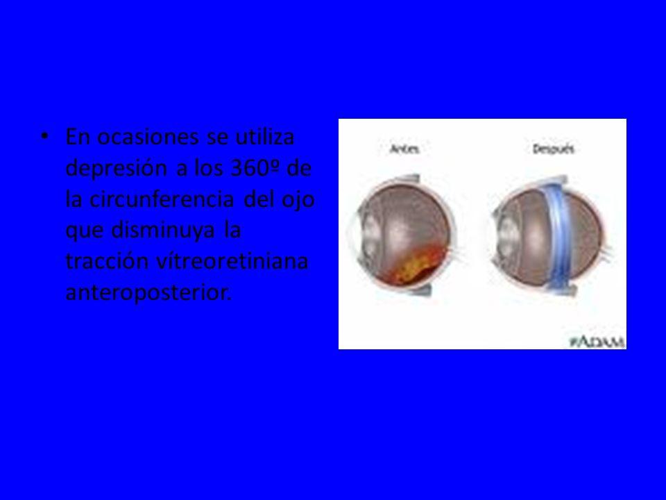 En ocasiones se utiliza depresión a los 360º de la circunferencia del ojo que disminuya la tracción vítreoretiniana anteroposterior.