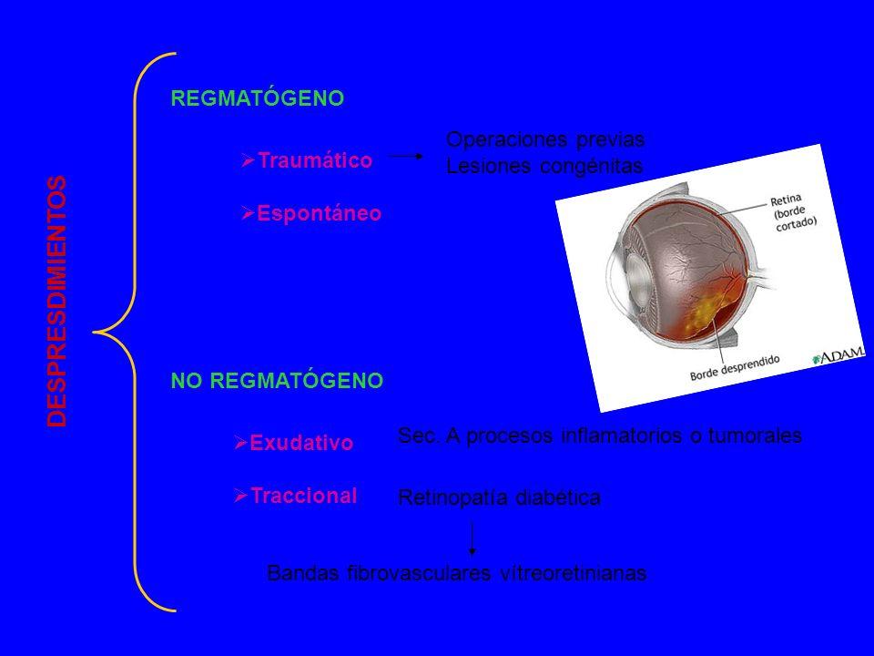 Desprendimiento de retina 40 – 70 años 40 – 70 años 25% bilaterales 25% bilaterales 1 caso de 20 000 habitantes x año 1 caso de 20 000 habitantes x año 5% miopía 5% miopía 1-3% operados de cataratas 1-3% operados de cataratas CAUSAS CAUSAS Miopía Miopía Afaquia Afaquia Traumatismo ocular Traumatismo ocular