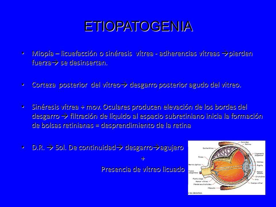 ETIOPATOGENIA Miopía – licuefacción o sinéresis vítrea - adherencias vítreas pierden fuerza se desinsertan. Miopía – licuefacción o sinéresis vítrea -