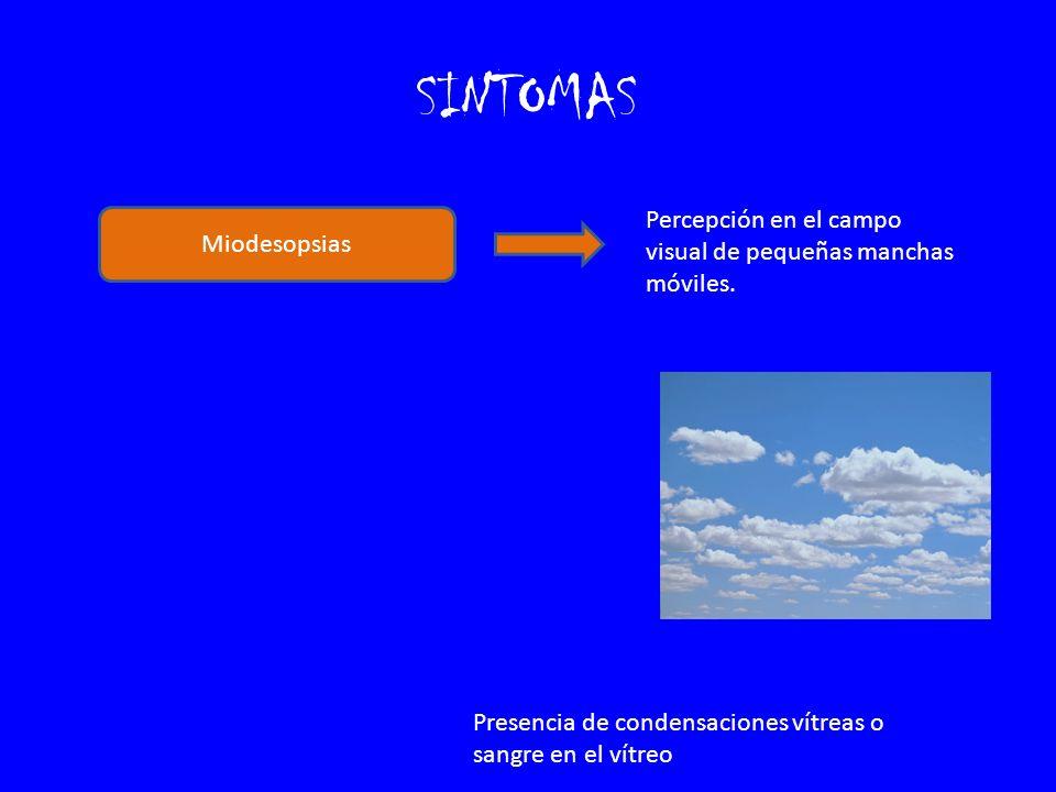 SINTOMAS Fotopsias Percepción espontánea de luz.