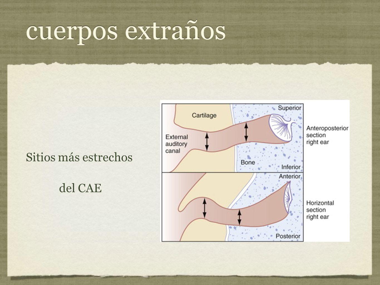 cuerpos extraños Sitios más estrechos del CAE Sitios más estrechos del CAE