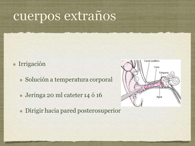 cuerpos extraños Irrigación Solución a temperatura corporal Jeringa 20 ml cateter 14 ó 16 Dirigir hacia pared posterosuperior Irrigación Solución a te