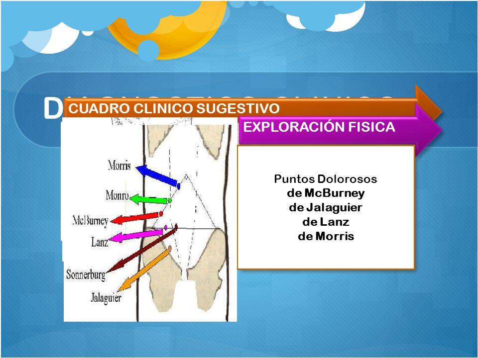 DIAGNOSTICO CLINICO CUADRO CLINICO SUGESTIVO Dolor abdominal agudo Tipo cólico Localizado inicialmente periumbilical que en menos de 24 hrs viaja a FI