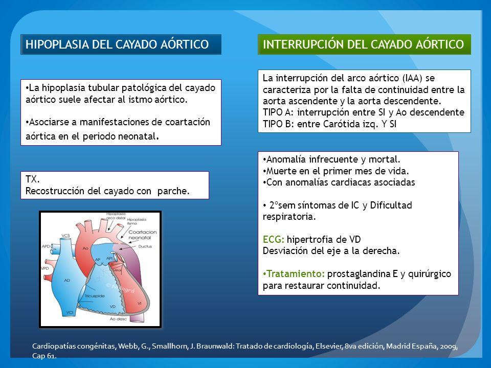 HIPOPLASIA DEL CAYADO AÓRTICO La hipoplasia tubular patológica del cayado aórtico suele afectar al istmo aórtico. Asociarse a manifestaciones de coart