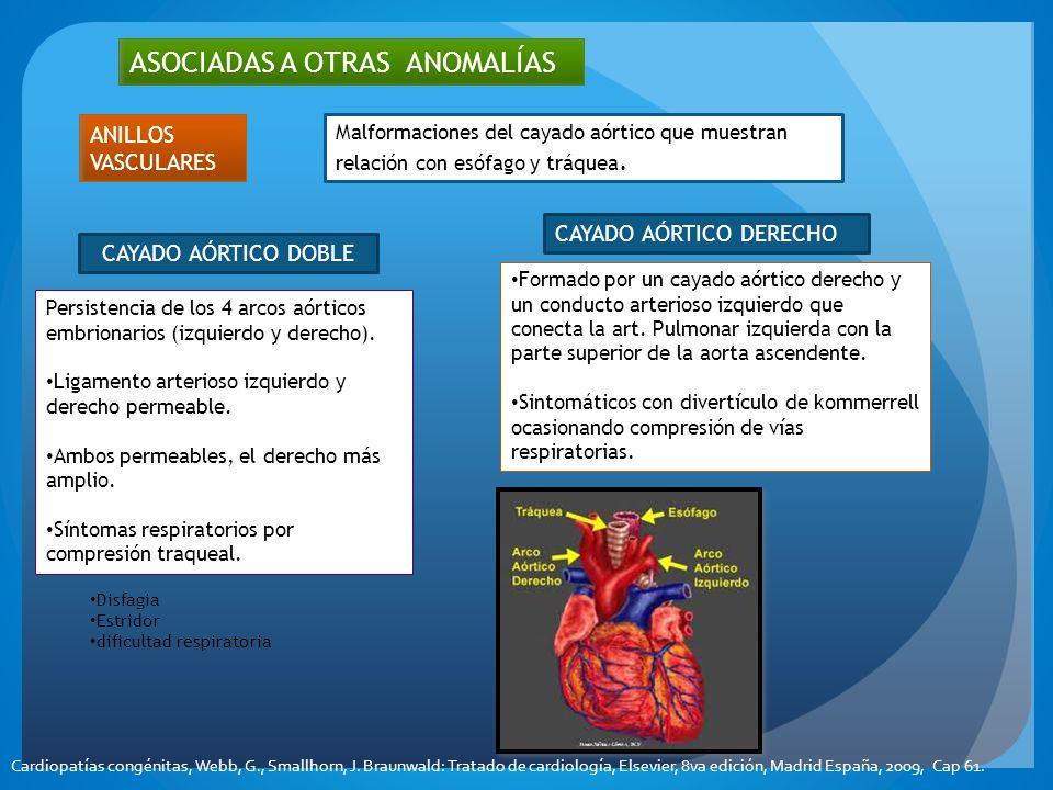 ASOCIADAS A OTRAS ANOMALÍAS CAYADO AÓRTICO DOBLE Persistencia de los 4 arcos aórticos embrionarios (izquierdo y derecho). Ligamento arterioso izquierd