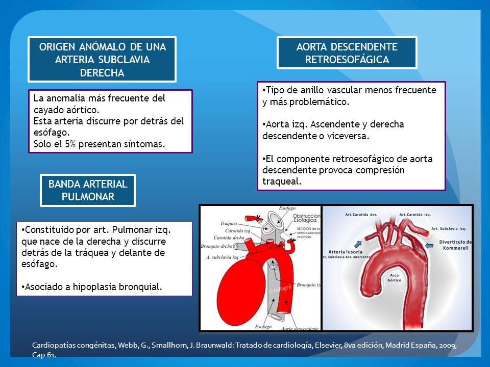 ORIGEN ANÓMALO DE UNA ARTERIA SUBCLAVIA DERECHA La anomalía más frecuente del cayado aórtico. Esta arteria discurre por detrás del esófago. Solo el 5%