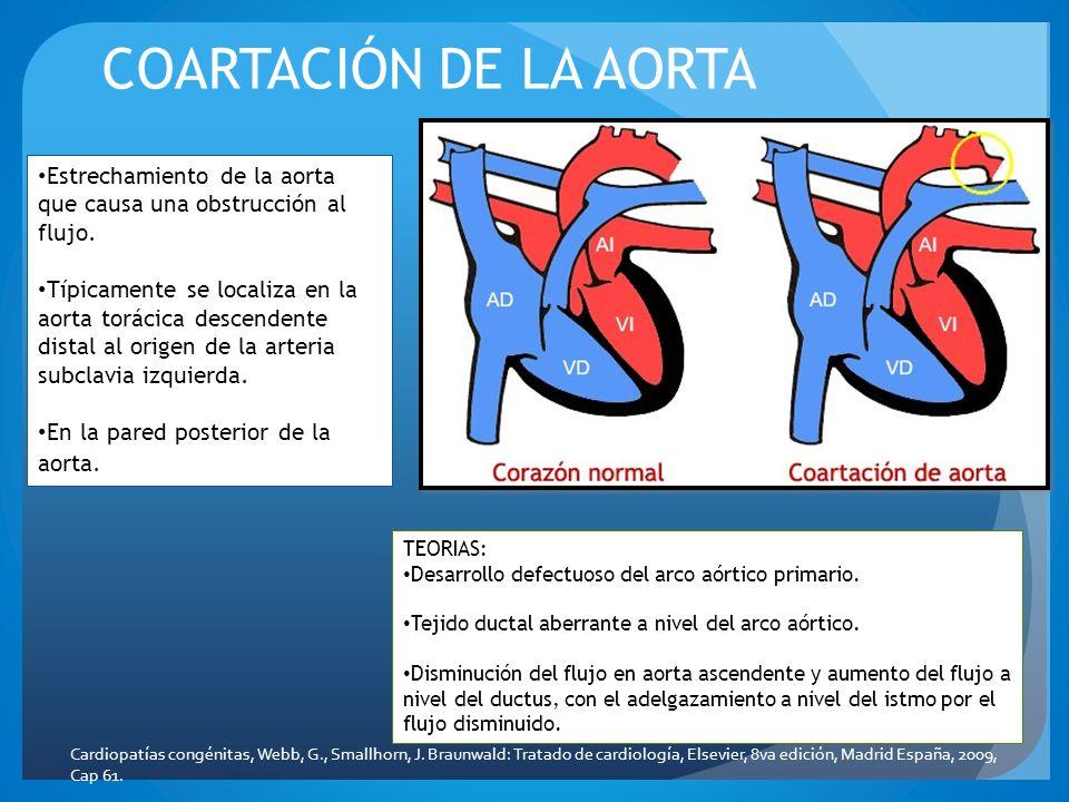 COARTACIÓN DE LA AORTA Estrechamiento de la aorta que causa una obstrucción al flujo. Típicamente se localiza en la aorta torácica descendente distal