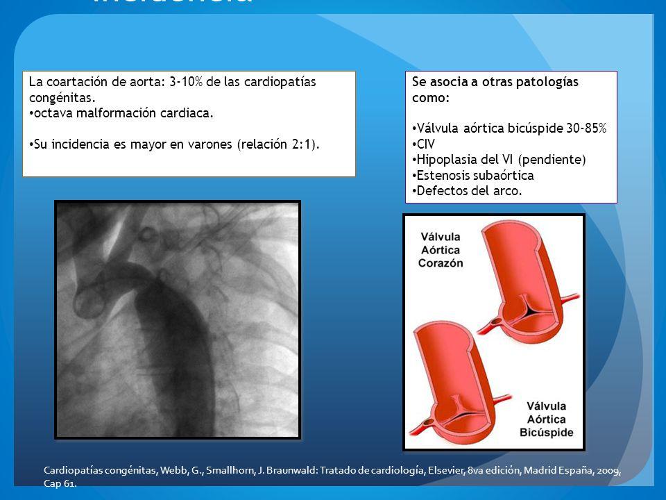 Incidencia La coartación de aorta: 3-10% de las cardiopatías congénitas. octava malformación cardiaca. Su incidencia es mayor en varones (relación 2:1