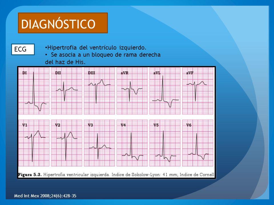 DIAGNÓSTICO ECG Hipertrofia del ventrículo izquierdo. Se asocia a un bloqueo de rama derecha del haz de His. Med Int Mex 2008;24(6):428-35