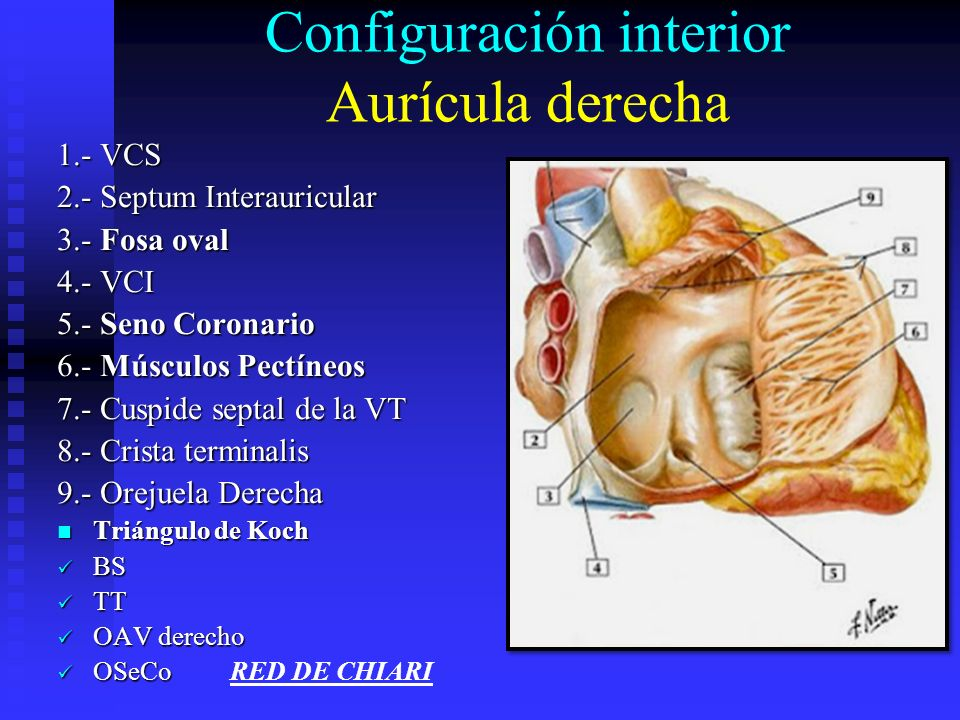 Configuración interior Aurícula derecha 1.- VCS 2.- Septum Interauricular 3.- Fosa oval 4.- VCI 5.- Seno Coronario 6.- Músculos Pectíneos 7.- Cuspide