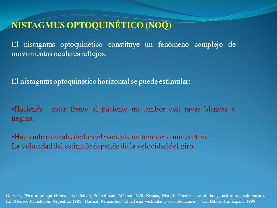 NISTAGMUS OPTOQUINÉTICO (NOQ) El nistagmus optoquinético constituye un fenómeno complejo de movimientos oculares reflejos. El nistagmus optoquinético