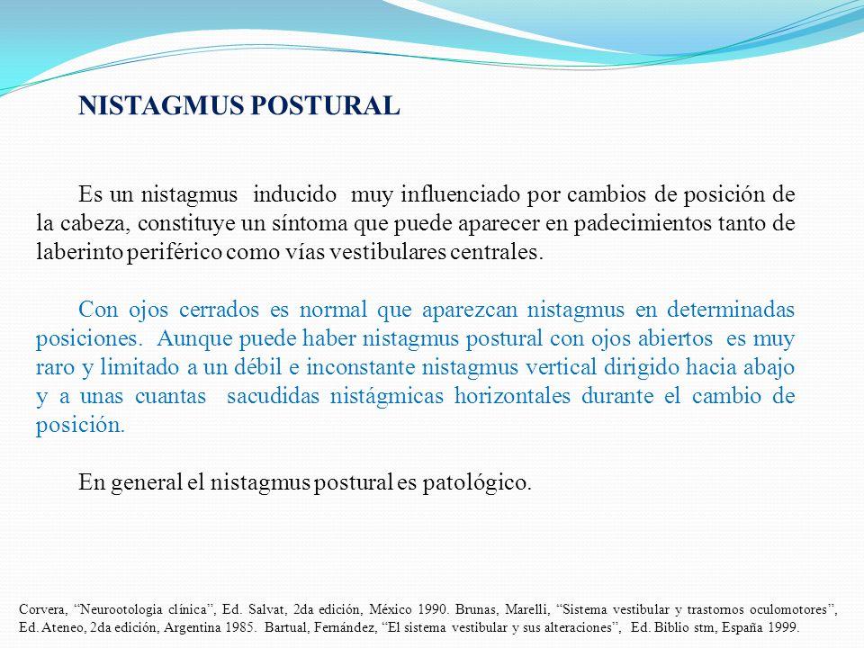 NISTAGMUS POSTURAL Es un nistagmus inducido muy influenciado por cambios de posición de la cabeza, constituye un síntoma que puede aparecer en padecim