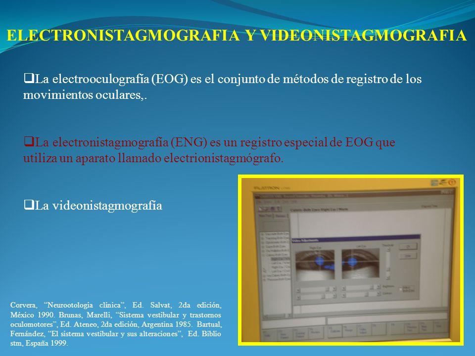 La electrooculografía (EOG) es el conjunto de métodos de registro de los movimientos oculares,. La electronistagmografía (ENG) es un registro especial