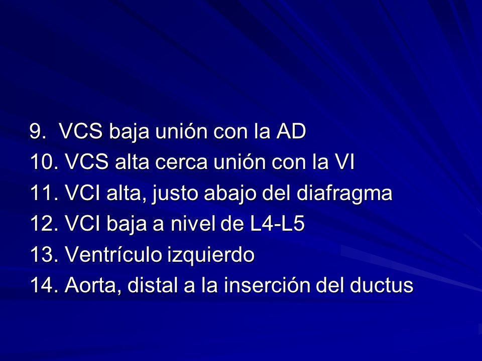 9. VCS baja unión con la AD 10. VCS alta cerca unión con la VI 11. VCI alta, justo abajo del diafragma 12. VCI baja a nivel de L4-L5 13. Ventrículo iz
