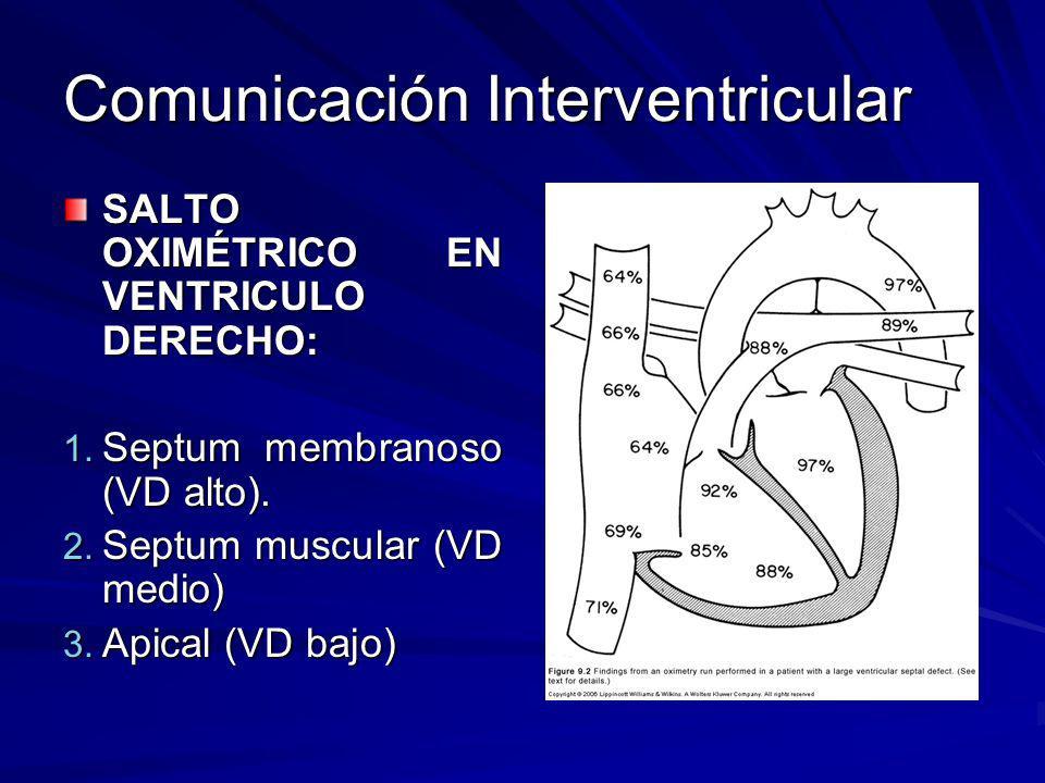 Comunicación Interventricular SALTO OXIMÉTRICO EN VENTRICULO DERECHO: 1. Septum membranoso (VD alto). 2. Septum muscular (VD medio) 3. Apical (VD bajo