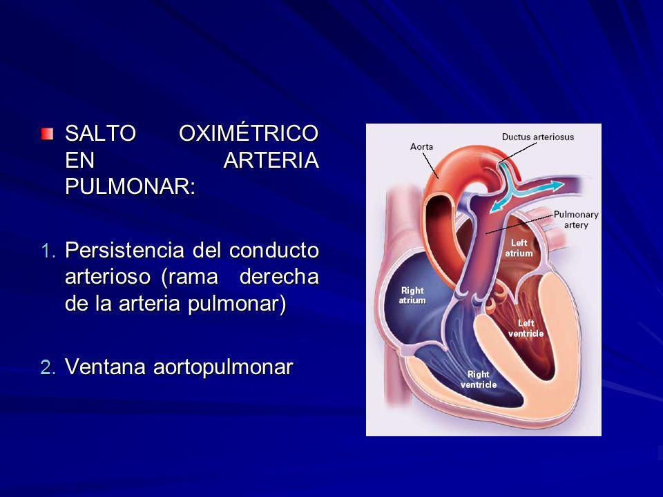SALTO OXIMÉTRICO EN ARTERIA PULMONAR: 1. Persistencia del conducto arterioso (rama derecha de la arteria pulmonar) 2. Ventana aortopulmonar