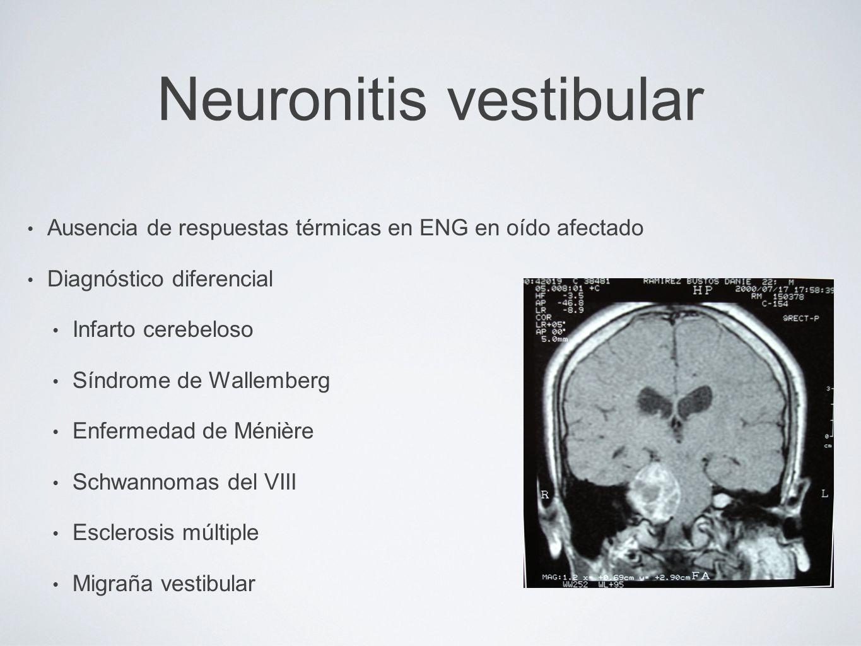 Neuronitis vestibular Ausencia de respuestas térmicas en ENG en oído afectado Diagnóstico diferencial Infarto cerebeloso Síndrome de Wallemberg Enferm