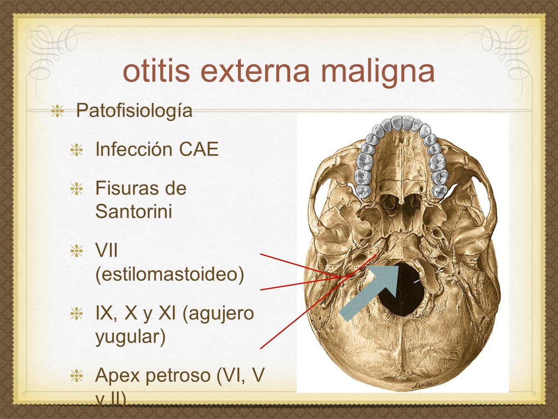 otitis externa maligna Patofisiología Infección CAE Fisuras de Santorini VII (estilomastoideo) IX, X y XI (agujero yugular) Apex petroso (VI, V y II)