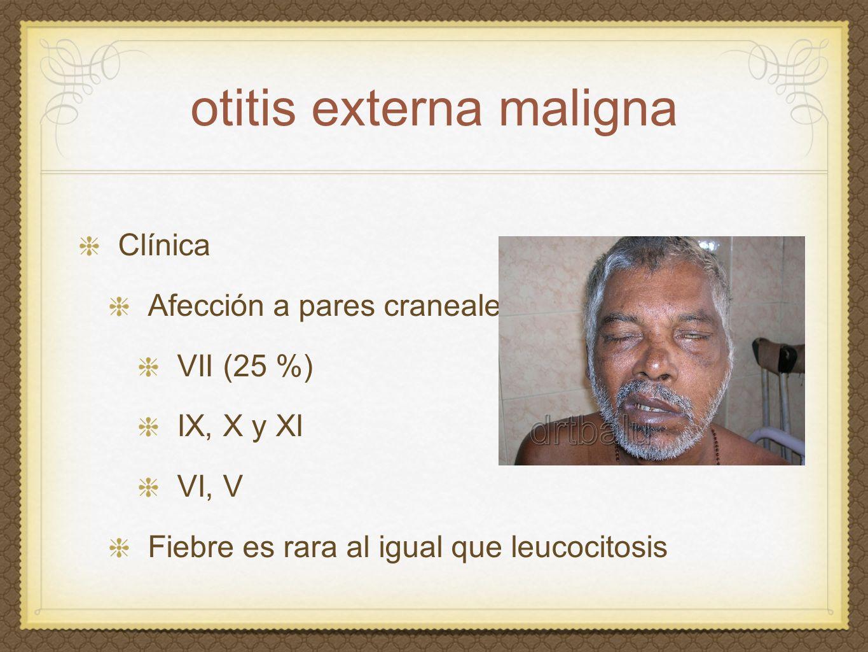 otitis externa maligna Clínica Afección a pares craneales VII (25 %) IX, X y XI VI, V Fiebre es rara al igual que leucocitosis