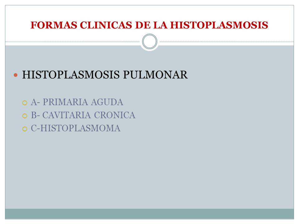 FORMAS CLINICAS DE LA HISTOPLASMOSIS HISTOPLASMOSIS PULMONAR A- PRIMARIA AGUDA B- CAVITARIA CRONICA C-HISTOPLASMOMA