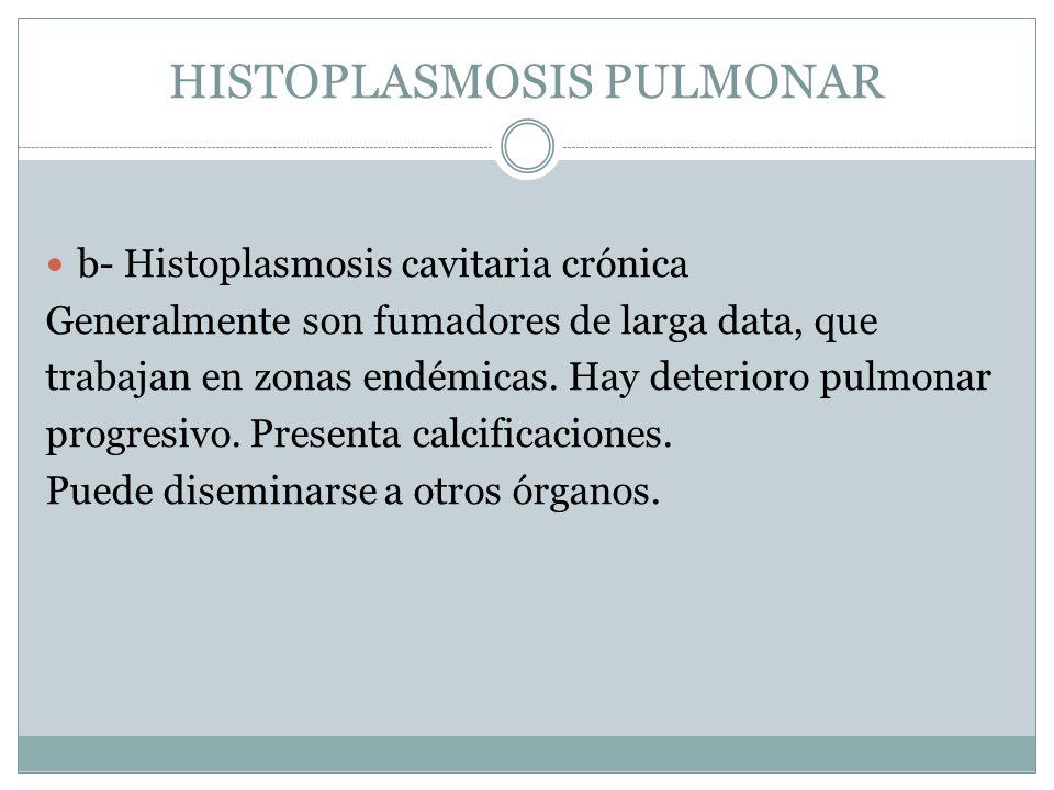 HISTOPLASMOSIS PULMONAR b- Histoplasmosis cavitaria crónica Generalmente son fumadores de larga data, que trabajan en zonas endémicas. Hay deterioro p