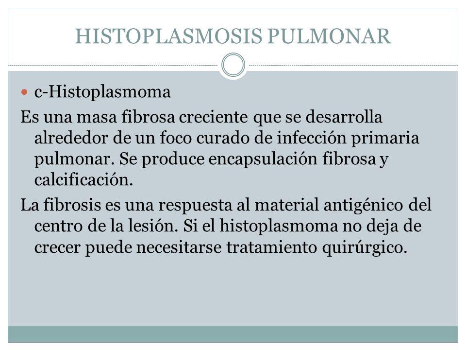 HISTOPLASMOSIS PULMONAR c-Histoplasmoma Es una masa fibrosa creciente que se desarrolla alrededor de un foco curado de infección primaria pulmonar. Se