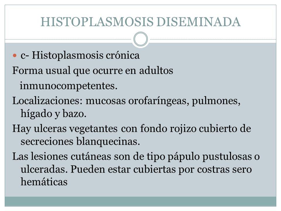 HISTOPLASMOSIS DISEMINADA c- Histoplasmosis crónica Forma usual que ocurre en adultos inmunocompetentes. Localizaciones: mucosas orofaríngeas, pulmone