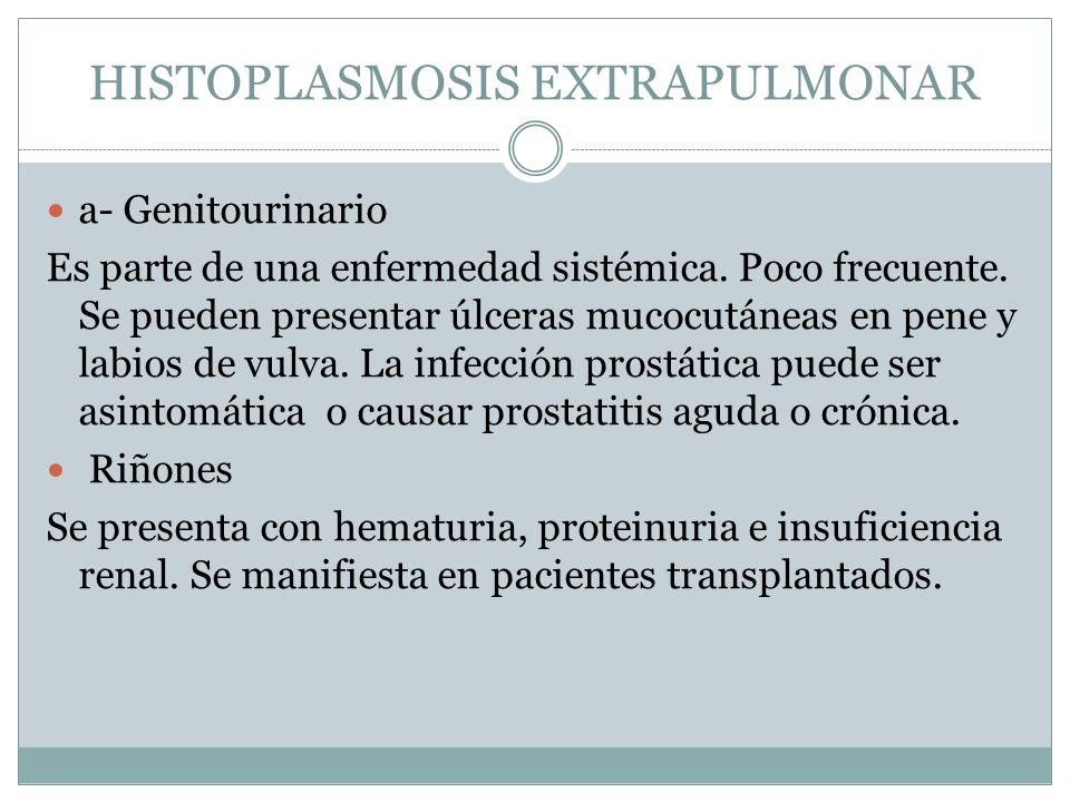 HISTOPLASMOSIS EXTRAPULMONAR a- Genitourinario Es parte de una enfermedad sistémica. Poco frecuente. Se pueden presentar úlceras mucocutáneas en pene