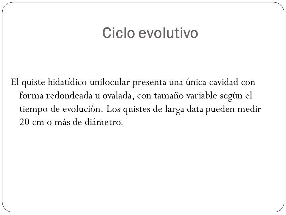Ciclo evolutivo El quiste hidatídico unilocular presenta una única cavidad con forma redondeada u ovalada, con tamaño variable según el tiempo de evol