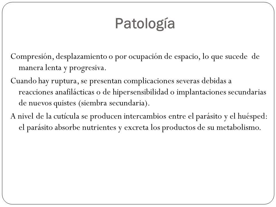 Patología Compresión, desplazamiento o por ocupación de espacio, lo que sucede de manera lenta y progresiva. Cuando hay ruptura, se presentan complica