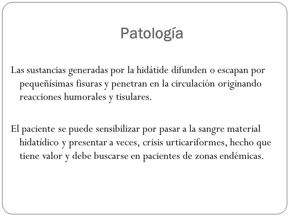 Patología Las sustancias generadas por la hidátide difunden o escapan por pequeñísimas fisuras y penetran en la circulación originando reacciones humo