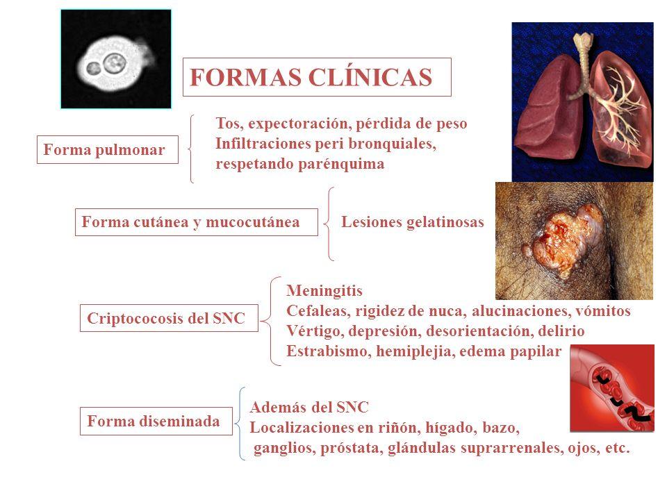 FORMAS CLÍNICAS Forma pulmonar Forma cutánea y mucocutánea Forma diseminada Criptococosis del SNC Tos, expectoración, pérdida de peso Infiltraciones p