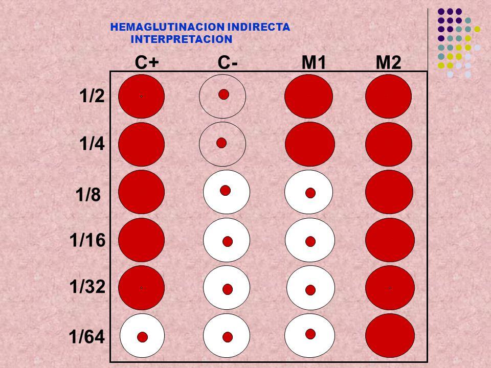 C+ C- M1 M2 1/2 1/4 1/8 1/16 1/32 1/64 HEMAGLUTINACION INDIRECTA INTERPRETACION