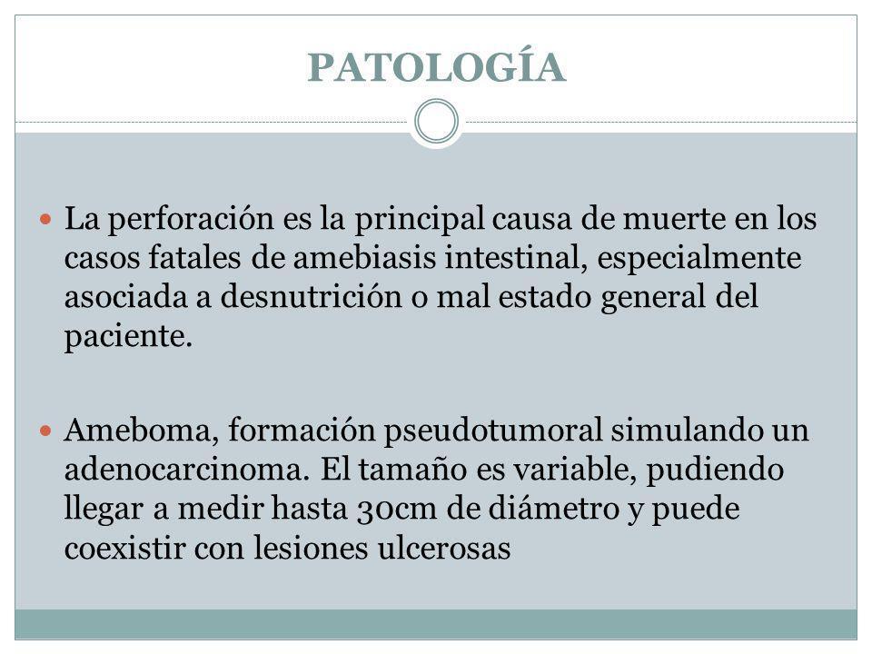 PATOLOGÍA La perforación es la principal causa de muerte en los casos fatales de amebiasis intestinal, especialmente asociada a desnutrición o mal est