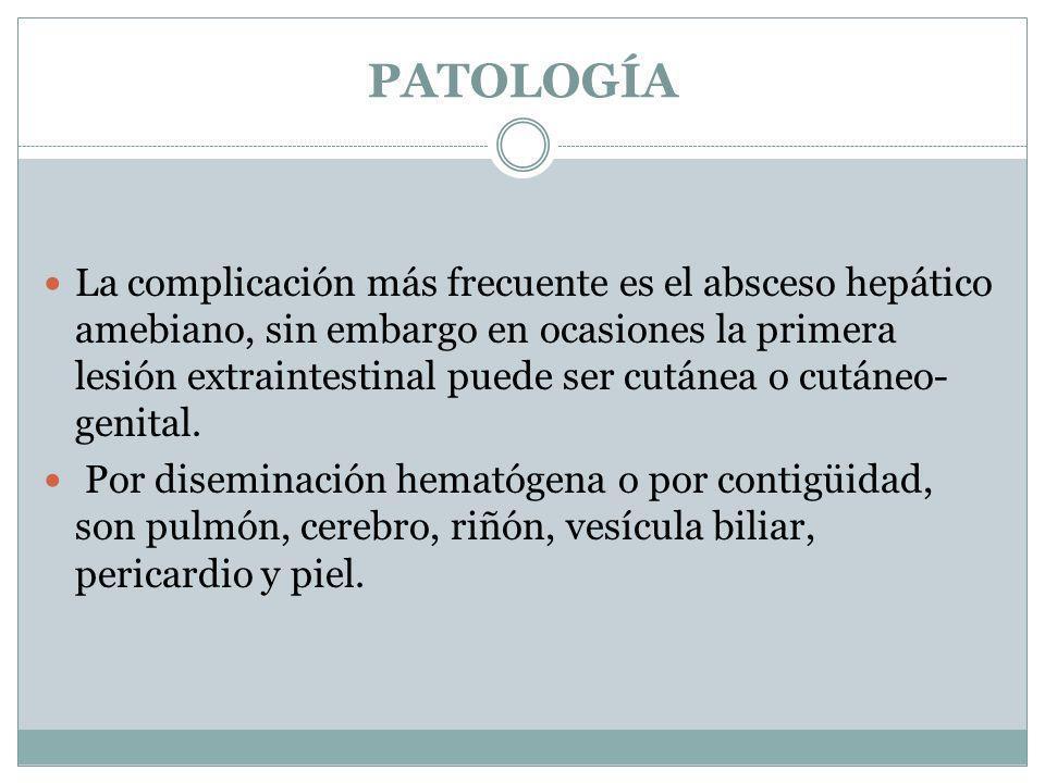 PATOLOGÍA La complicación más frecuente es el absceso hepático amebiano, sin embargo en ocasiones la primera lesión extraintestinal puede ser cutánea