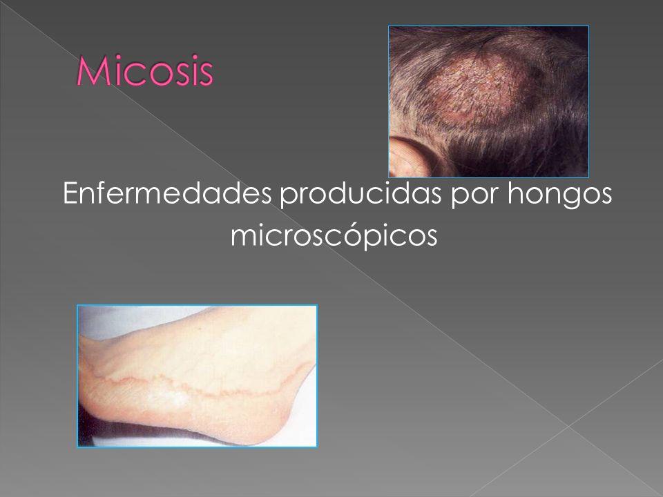 Enfermedades producidas por hongos microscópicos