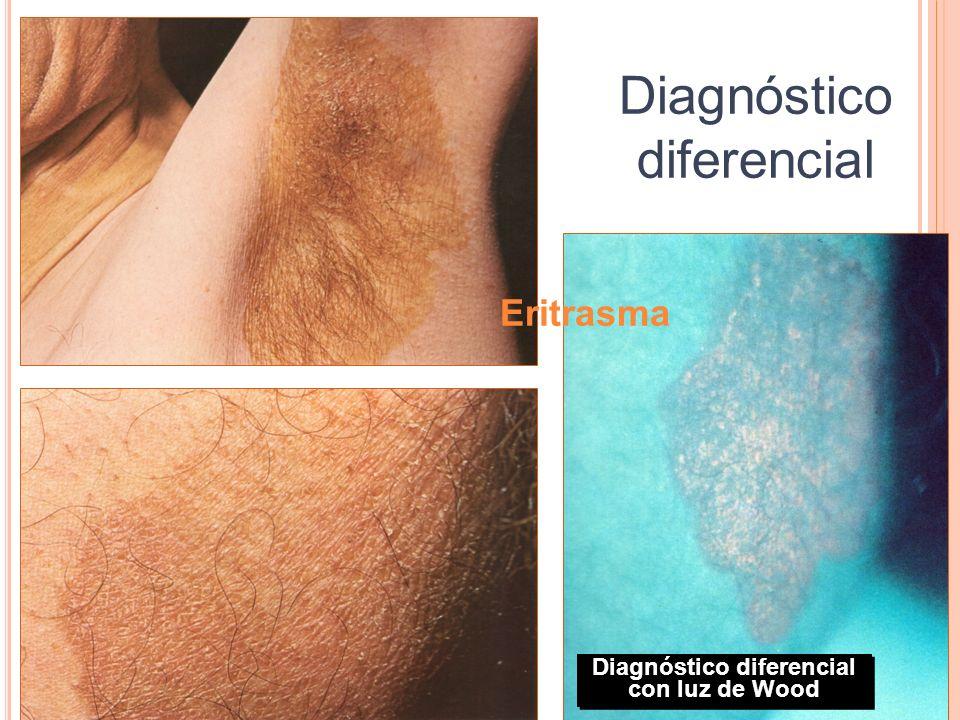 Eritrasma Diagnóstico diferencial Diagnóstico diferencial con luz de Wood