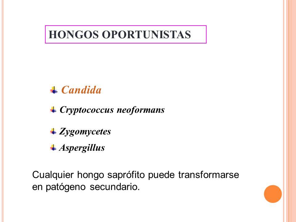 CUADROS CLÍNICOS Candidosis mucocutánea - Candidosis orofaríngea: muguet, glositis, queilitis, etc.