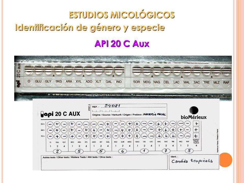 API 20 C Aux ESTUDIOS MICOLÓGICOS ESTUDIOS MICOLÓGICOS Identificación de género y especie