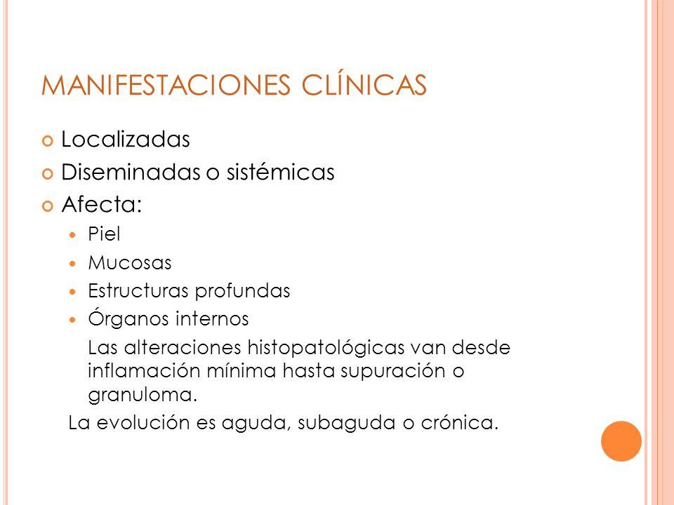 3- Re aislamiento en CHROMAgar Candida Identificación presuntiva de: Candida krusei Candida tropicalis Candida albicans Candida glabrata .