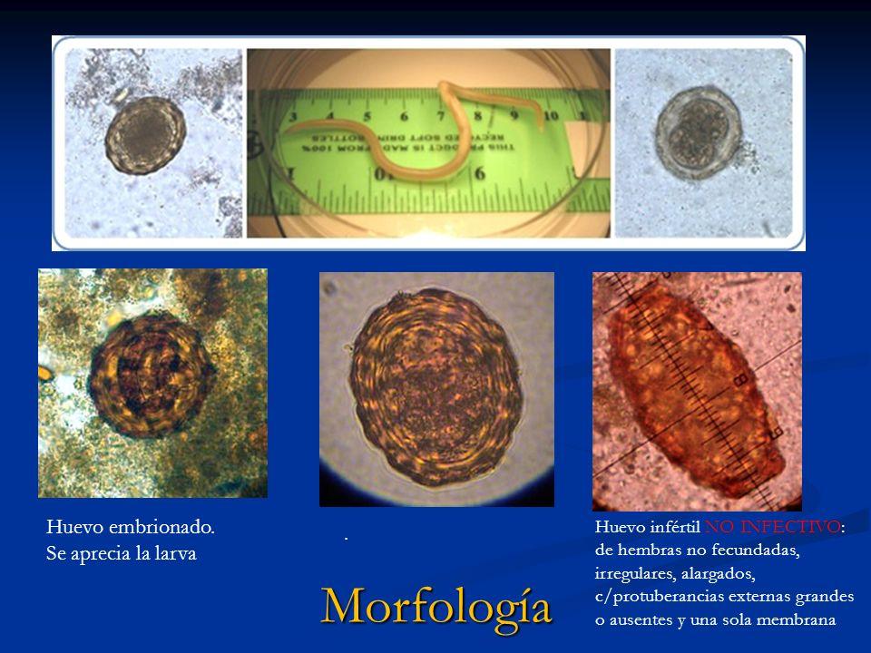 Huevo embrionado. Se aprecia la larva. Huevo infértil NO INFECTIVO: de hembras no fecundadas, irregulares, alargados, c/protuberancias externas grande