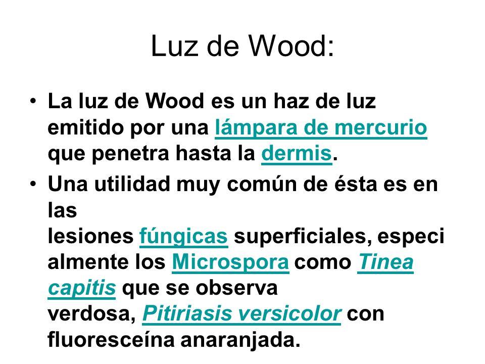 Luz de Wood: La luz de Wood es un haz de luz emitido por una lámpara de mercurio que penetra hasta la dermis.lámpara de mercuriodermis Una utilidad mu